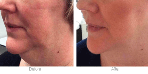 CoolSculpting for the neck before and after photos