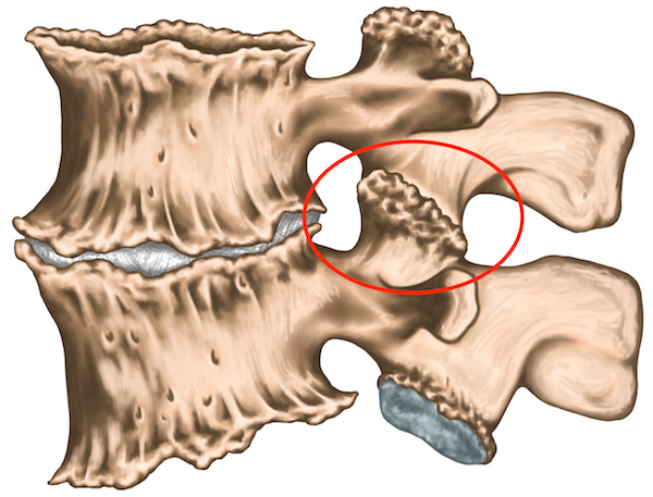 aggravation of the lumbar spondylosis without fracture