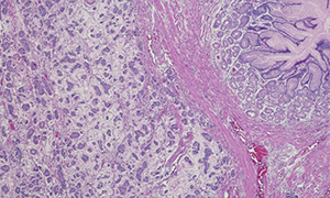 Gastric cancer histology