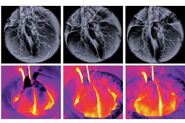Lungs recovering (Gordana Vunjak-Novakovic)