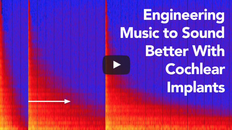 Engineering Music to Sound Better With Cochlear Implants