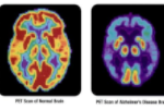 File:PET scan-normal brain-alzheimers disease brain.PNG