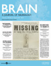 The Journal of Neuroscience: 37 (36)
