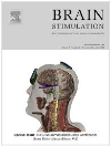 Image result for Brain Stimulation journal