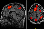 By measuring activity in different parts of the brain, neuroscientsts can get a sense of how some people will respond to treatments.