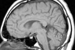 MRI head side.jpg