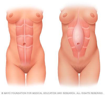 postpartum fitness -- diastasis rectii