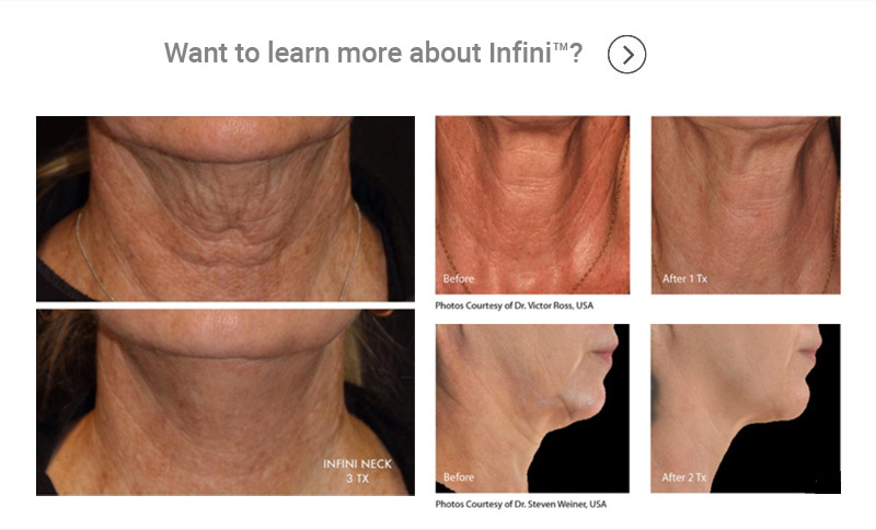 Want to learn more about Infini?