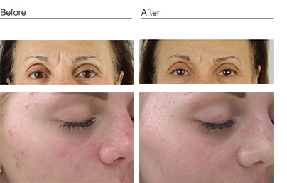Before and After of Environ Cool Peel
