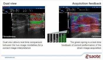 Klinična slika elastografija dojke - MyLab Twice