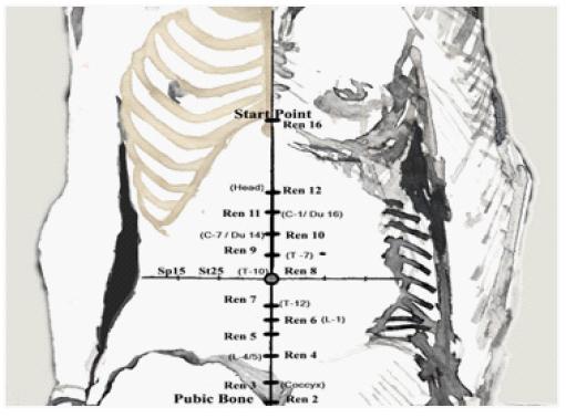 Figure 3 - eLotus Back Pain