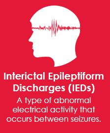 Interictal discharge