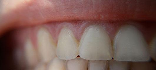 Teeth whitening can cause permanent damage: UBC prof