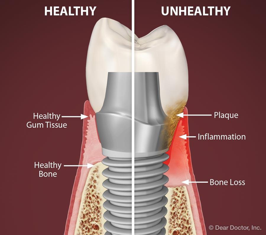 Peri-implant Disease Graphic
