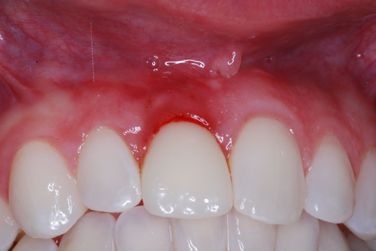 Red and inflamed gum above tooth