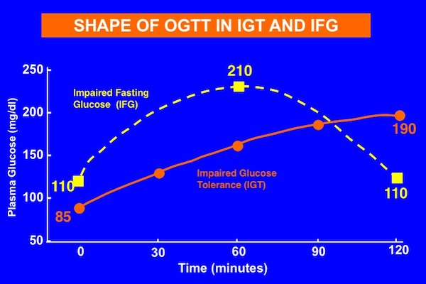 Shape of oral glucose tolerance test (OGTT) of impaired fasting glucose (IFG) versus impaired glucose tolerance (IGT)