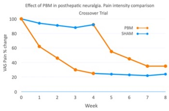Effect of PBM in posthepatic neuralgia