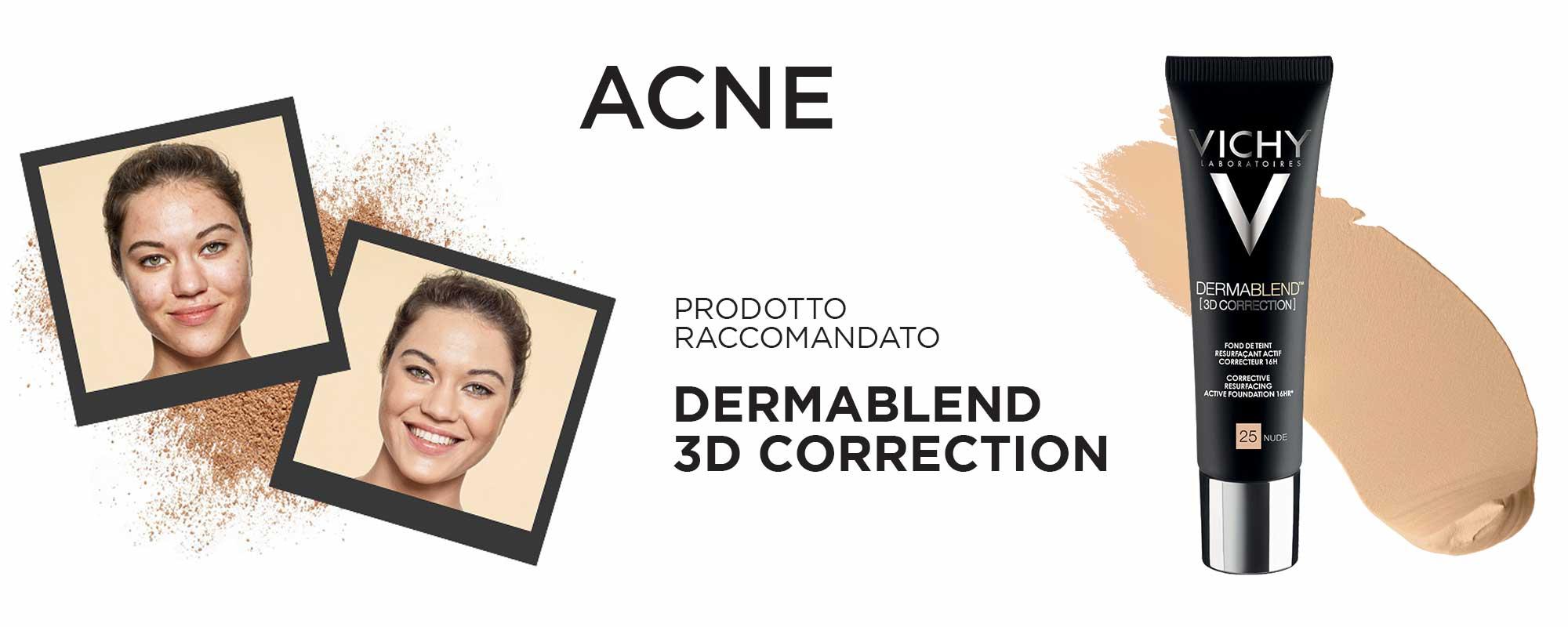 acne vichy