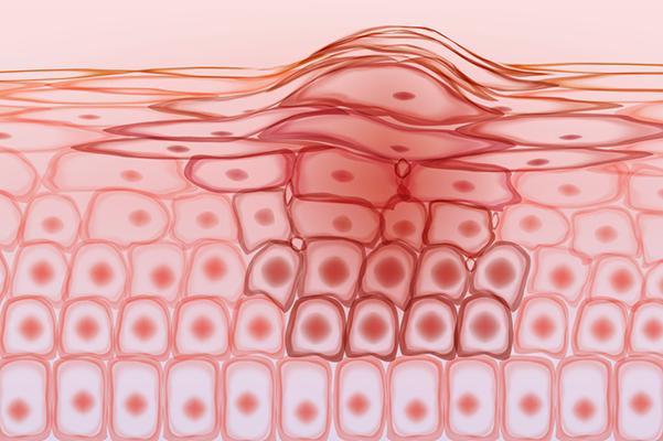 Skin tissue cancer cells