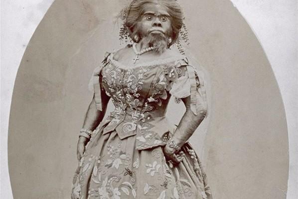 قصة جوليا بسترانا صاحبة لقب أبشع امرأة في التاريخ !