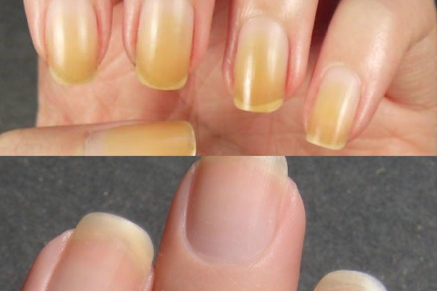 6 طرق سهلة للتخلص من الأظافر الصفراء وإستعادة بياضها