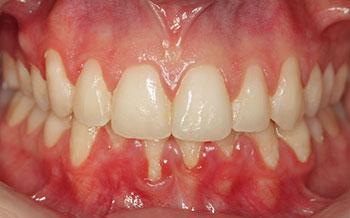 Fig. 1 : Vue clinique initiale montrant une abondance de plaque généralisée.