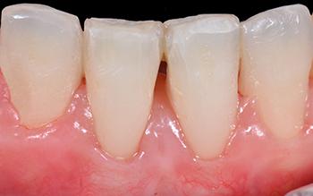 Fig. 12 et 13: A 3 mois, noter le recouvrement des racines dénudées et l'intégration esthétique de la greffe conjonctive qui a permis aussi d'épaissir les tissus.
