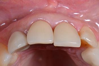 Fig. 13 : Vue occlusale de la restauration définitive. On note toujours une harmonie de la muqueuse péri-implantaire vis à vis des dents adjacentes.