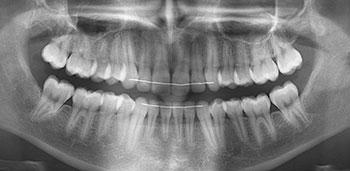 Fig. 3a : Panoramique dentaire : absence de maladie parodontale, de lésions carieuses ou endodontiques.