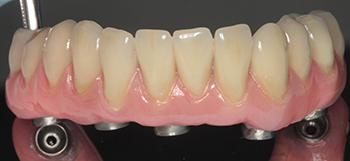 Figs 9a à e: Le bridge provisoire a réussi à donner satisfaction à la patiente au niveau esthétique, phonétique et masticatoire à la patiente. Par conséquent, la prothèse d'usage n'est qu'une copie améliorée de ce bridge provisoire. Noter la parfaite adaptation de l'armature sur les piliers.