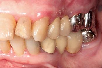 Fig. 2: L'état pathologique parodontal exigera une prise en charge avec réadaptation des techniques d'hygiène bucco-dentaires. Ceci permettra de réduire l'inflammation gingivale et la stabilisation de l'atteinte osseuse maxillaire au tiers moyen.