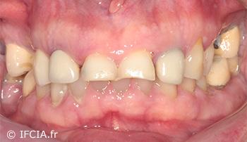 Fig.2 : Vue vestibulaire qui permet de noter une inflammation gingivale, des récessions et le non-alignement des collets