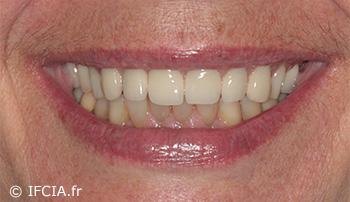 Fig. 10 : Vue du nouveau sourire de la patiente indiquant clairement l'intérêt d'avoir écrêté et donc remonté la jonction prothèse/muqueuse
