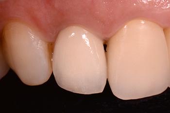 Fig. 15 : Vue vestibulaire à 3 ans montrant une stabilité des tissus mous.