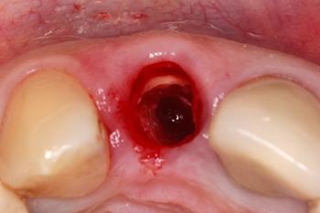 Fig. 6 : Vue occlusale après séparation mésio-distale de la racine et extraction des parois palatine et proximales. On note la conservation de la partie vestibulaire.