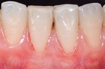 Fig. 14 et 15 : Cicatrisation à 15 mois montrant une stabilité des tissus.
