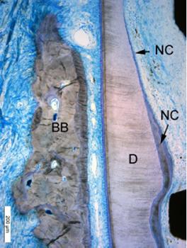 Fig. 4a et 4b : Coupes histologiques tirées de l'article d'Hürzeler (2010). Ces coupes permettent de bien distinguées la position de l'implant par rapport à la paroi vestibulaire de la racine. On a successivement de gauche à droite, l'os alvéolaire vestibulaire préservé, le ligament parodontal, la racine, l'implant puis la paroi alvéolaire lingual.