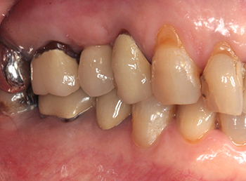 Fig. 1 : Vue clinique des dents 16 et 17 avec indication d'extraction.