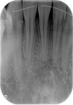 Fig. 3a: Panoramique dentaire: absence de maladie parodontale, de lésions carieuses ou endodontiques.