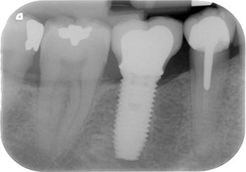 Fig 10a à 10c: Rétro-alvéolaires standardisées avec la couronne d'usage en place à 1, 2 ans et 3 ans. Noter la stabilité du niveau osseux et l'absence de cratérisation autour du col implantaire.