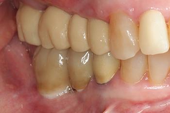 Fig. 5: La fonction masticatrice bilatérale de la patiente est maintenue à l'aide du bridge provisoire placé rapidement après la mise en place des implants en secteur 1.