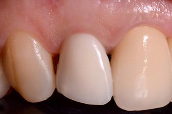 Fig. 10a et b : Contrôle à 6 mois avec la provisoire. Sur la vue occlusale on note la préservation du galbé vestibulaire et la présence d'une attache sans inflammation.