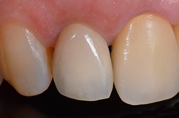 Fig. 12 : Vue vestibulaire 10 mois après l'intervention. Cliniquement la muqueuse péri-implantaire est saine avec une apparence naturelle.