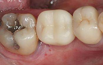 Fig. 6 : Vue occlusale de la couronne provisoire avec une table plus réduite que les dents adjacentes.