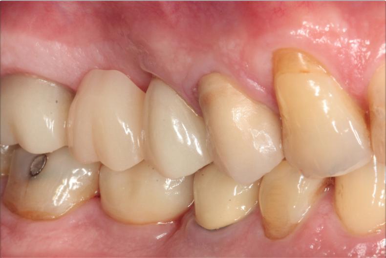 Figure 8 : Suivi implantaire 3 ans après l'intervention montrant une bonne stabilité des tissus mous.