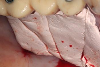 Fig. 12: Protection du site de prélèvement avec un pansement (Coe-pack) retenu avec des sutures. Il participera à l'hémostase et au confort postopératoire de la patiente.