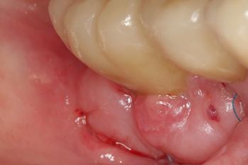 Fig. 14: La néo-vascularisation établie, on observe une bonne intégration et un remodelage tissulaire à 15 jours.