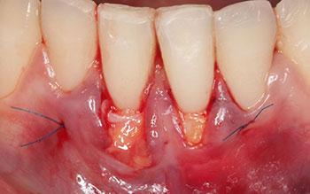 Fig. 8 : Mise en place du greffon au niveau du site receveur puis sutures au monofilament polypropylène 6/0 non résorbable