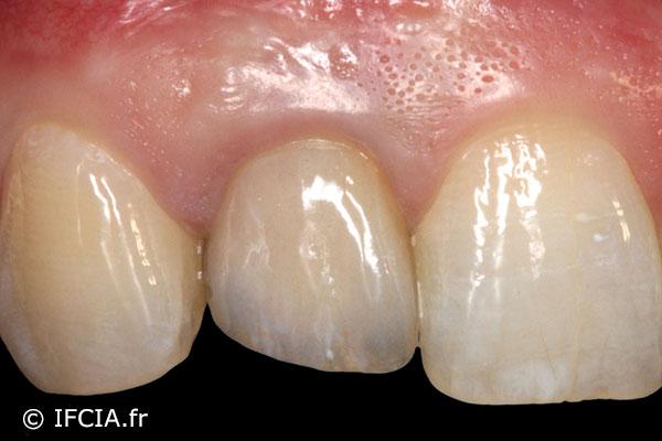 Fig. 10 Vue vestibulaire de la couronne d'usage et suivi implantaire 2 ans et demi après l'intervention. Noter le maintien des papilles et l'intégration muqueuse de la couronne sur implant.