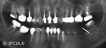 Fig. 2 : Panoramique dentaire initiale montrant l'absence de maladie parodontale, des soins à revoir, une 37 délabrée avec une lésion apicale posant l'indication de son extraction.